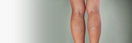 Arm with subcutaneous hematoma